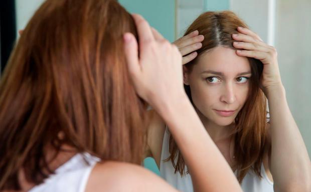 Schuppen: So löst du eines der peinlichsten Haarprobleme ...