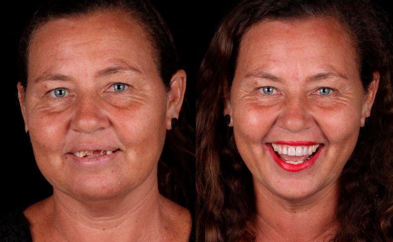 Dieser Zahnarzt richtet armen Leuten gratis die Zähne & die Nachher-Bilder sind so schön - WOMAN.at