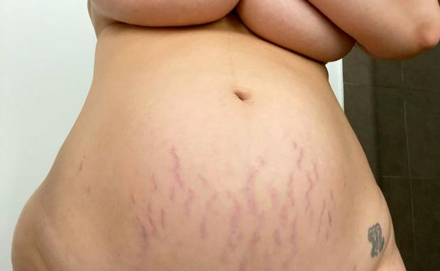 dehnungsstreifen nach der schwangerschaft