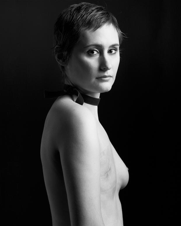Brustkrebs bei Frauen unter 25 Jahren - senologde