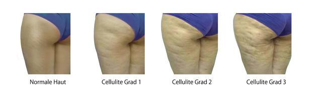Leichte Cellulite