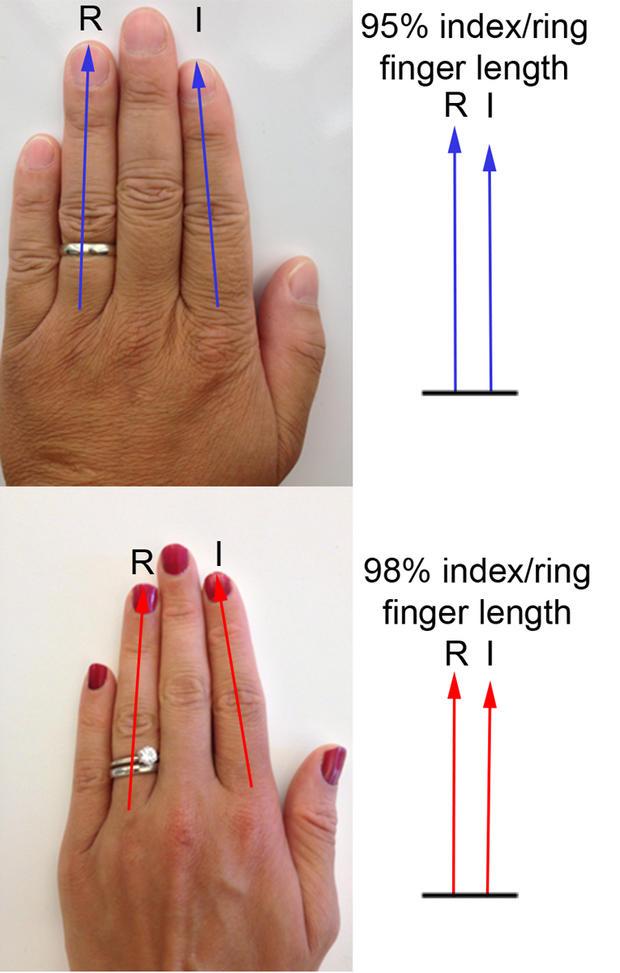 Länge des Ringfingers - Testosteron • WOMAN.AT