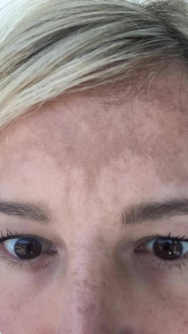 Wenn die Sommersprossen und das helle Haar