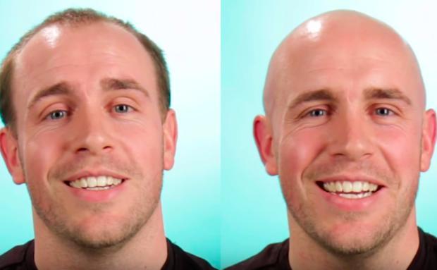 Wie Würde Dein Mann Mit Glatze Aussehen Womanat