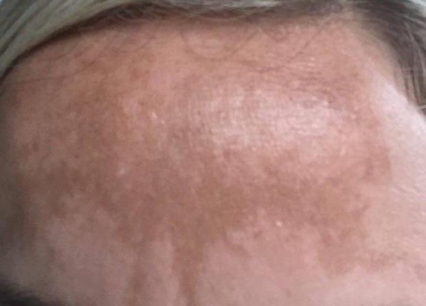 Pigmentflecken Stirn